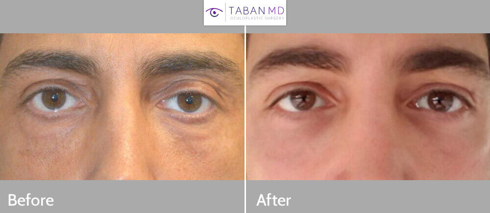 41 year old male, complained of eye asymmetry and looking tired which is due to left upper eyelid ptosis (droopy upper eyelid) and upper eyelid hollowness along with under eye bags. He underwent internal left upper eyelid ptosis surgery and bilateral upper eyelid-brow filler injection, along with transconjunctival lower blepharoplasty with fat repositioning. No skin was removed from any of the eyelids. Before and 6 weeks after cosmetic eyelid surgery and upper eyelid filler injection photos are shown. (After photo is a selfie.)