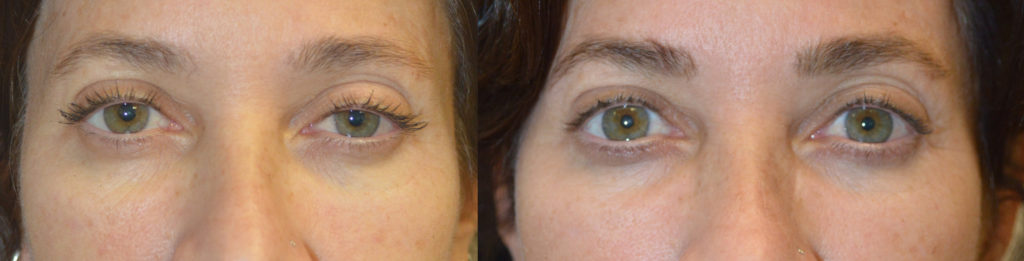 53 year old female, c/o looking tired and older from droopy upper eyelids and eye asymmetry. She underwent scarless internal upper eyelid ptosis surgery, greater in left eye. Before and 3 months after cosmetic eyelid ptosis surgery photos are shown.