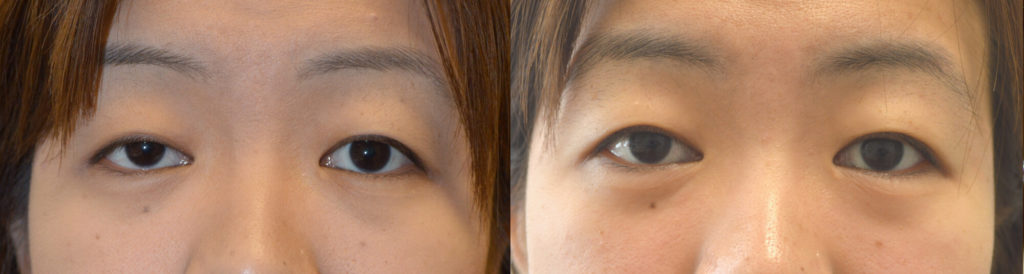 Young Asian female, underwent RIGHT upper eyelid ptosis surgery, using internal scar-less technique.