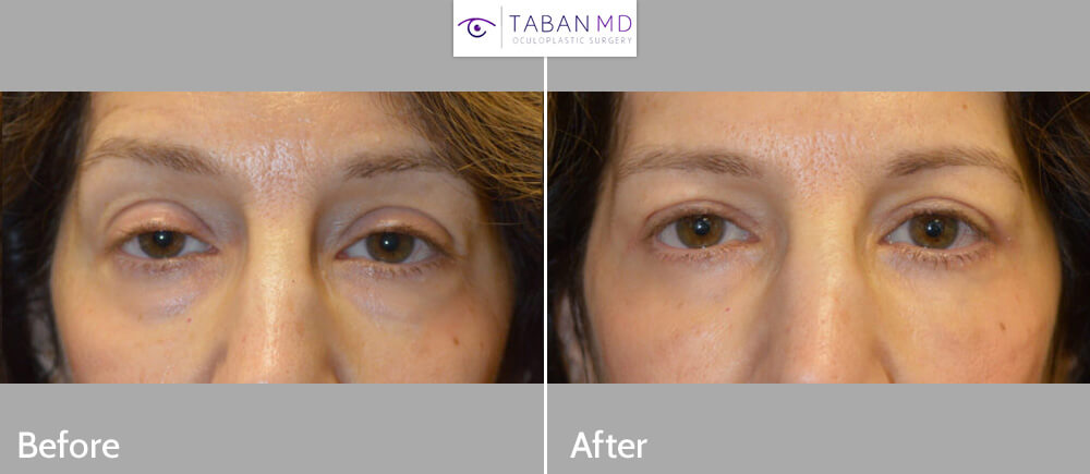 55 year old female, complained of looking tired and older. She underwent cosmetic eyelid procedures including lower blepharoplasty (transconjunctival with fat repositioning) to correct under eye bags, upper blepharoplasty (skin only), and upper eyelid ptosis (droopy eyelid; eyelid lift) surgery. Before and 3 months after photos are shown, with natural results.