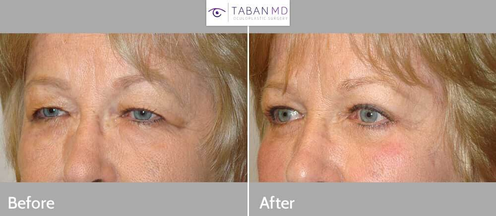 Before (left photo) and 3 months after (right photo) bilateral ptosis surgery, upper and lower blepharoplasty, and pretrichial lateral brow lift.