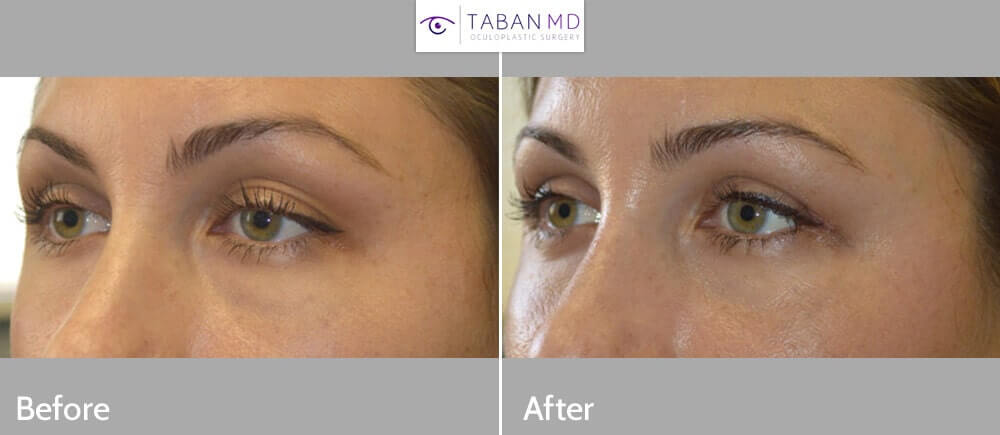 30 year old female, c/o upper eyelid asymmetry with loose extra skin in left upper eyelid. She underwent left upper eyelid skin only blepharoplasty, under local anesthesia in the office. Before and 2 months after cosmetic eyelid surgery photos are shown.