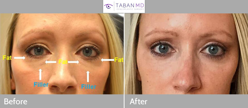 Young mother, from N Dakota, with history of under eye fat bags worsened by under eye filler injection, underwent filler removal and transconjunctival lower blepharoplasty with repositioning of the fat bags to fill the hollow tear trough area. Before and 3 months after eyelid surgery photos are shown.