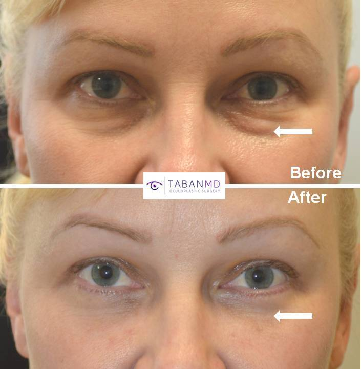 44 year old female, looking tired due to under-eye fat bags and dark circles, underwent transconjunctival lower blepharoplasty with eye fat bags repositioning plus skin pinch. Before and 6 weeks postop photos are shown.