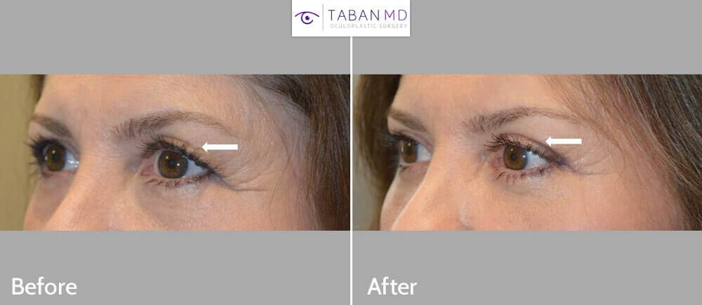 Middle age woman, complained of saggy eyelids, under eye bags and looking tired. She underwent upper blepharoplasty, lower blepharoplasty, and lateral pretrichial brow lift. Before and 3 months after cosmetic eyelid surgery photos are shown.
