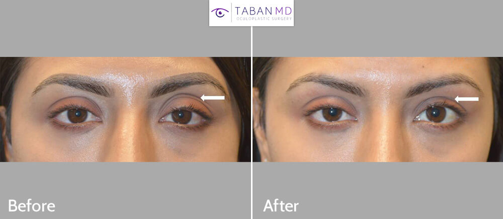 Young woman underwent left upper eyelid filler injection to correct sunken left upper eyelid which was causing upper eyelid asymmetry.