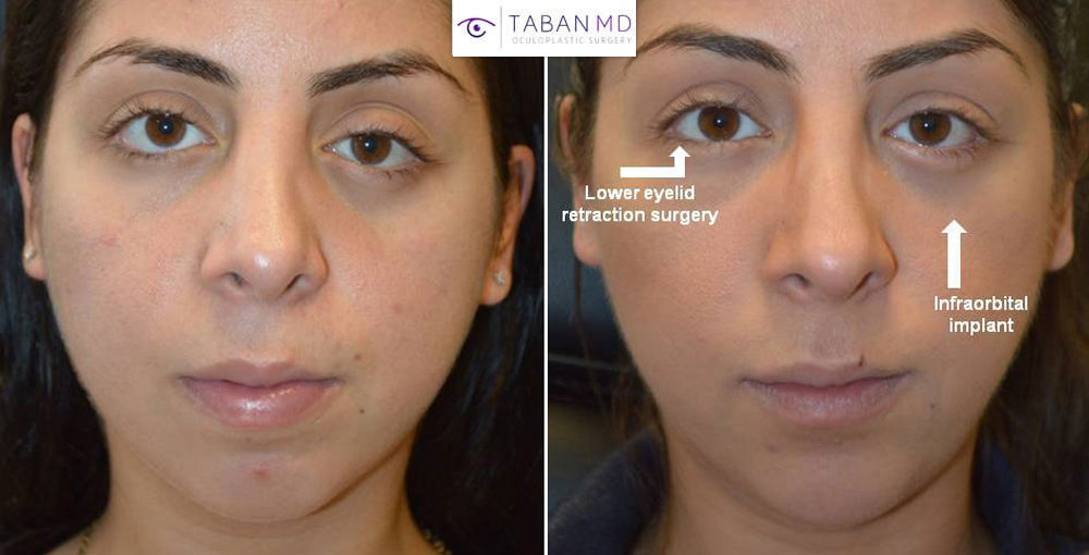 Young woman, with severe eye/facial trauma due to motor vehicle accident, underwent initial left orbital fracture repair with orbital implant and then underwent bilateral lower eyelid retraction surgery plus left infraorbital rim silicone implant.