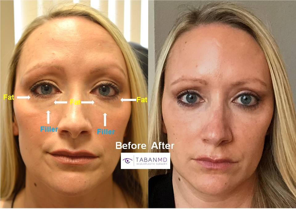 Young mother, from N Dakota, with history of under eye fat bags worsened by under eye filler inject