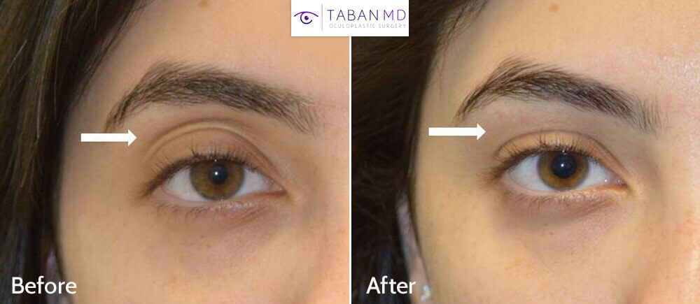 Young woman complained of sunken hollow upper eyelids with loose skin. She underwent upper eyelid filler injection. Before and immediate after treatment photos are shown.