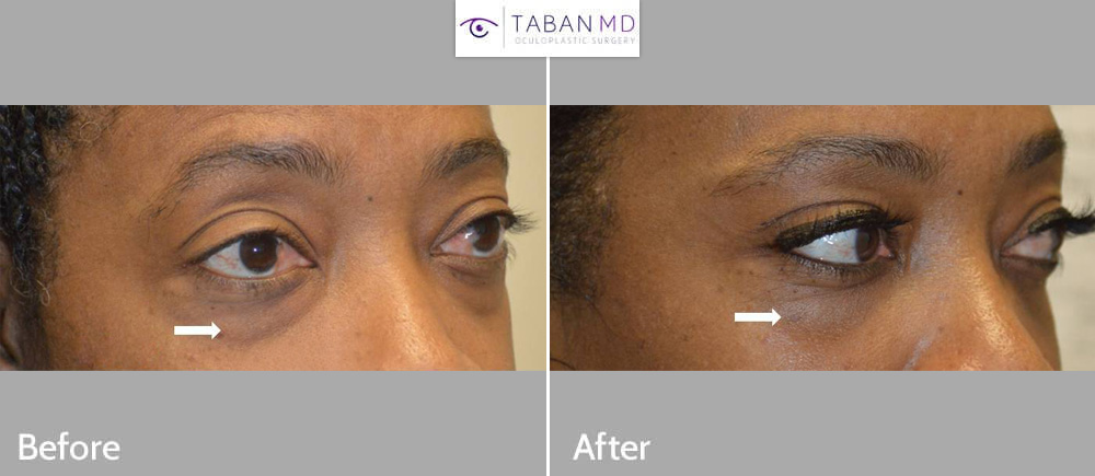 African American woman underwent scarless lower blepharoplasty to improve under eye fat bags.