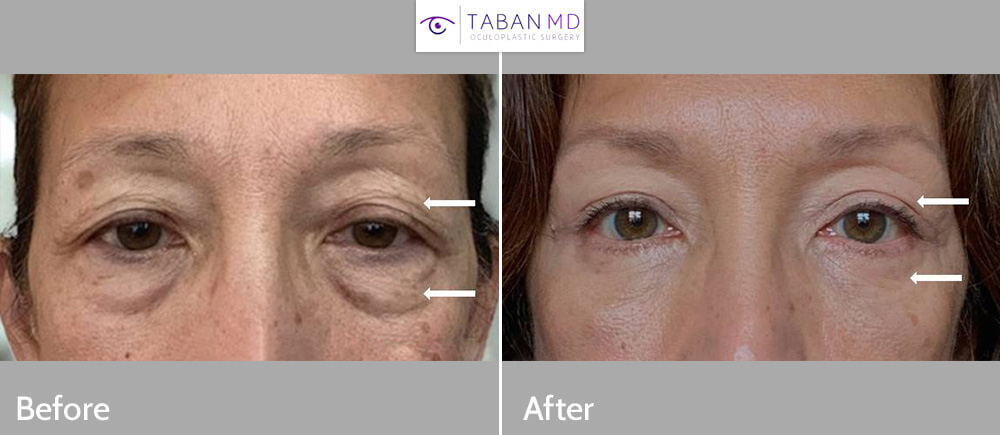 60+ year old woman underwent upper blepharoplasty (eyelid lift) and lower blepharoplasty. Her before and after selfie photos are shown.