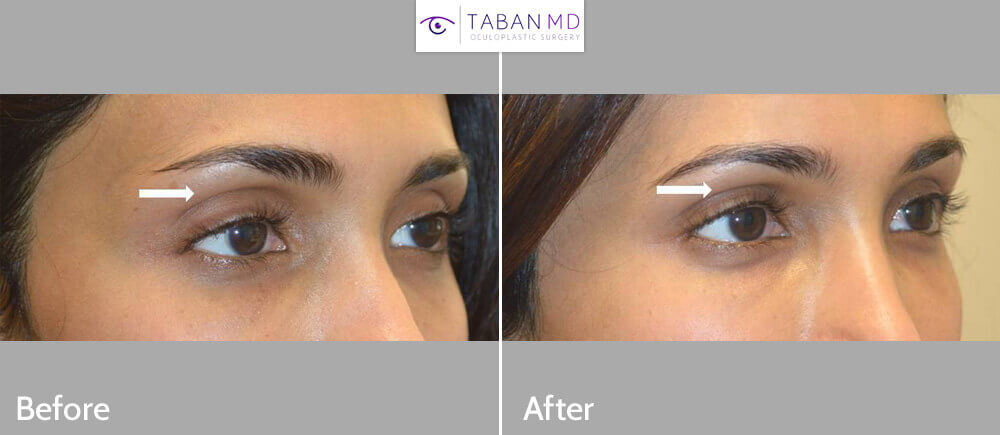 Young woman with deep sunken upper eyelids underwent upper eyelid sulcus filler injection. Note more youthful results.