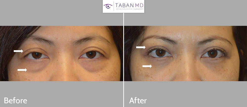 Young Asian woman underwent Asian upper blepharoplasty and scarless lower blepharoplasty (transconjunctival technique with fat repositioning to tear trough area).
