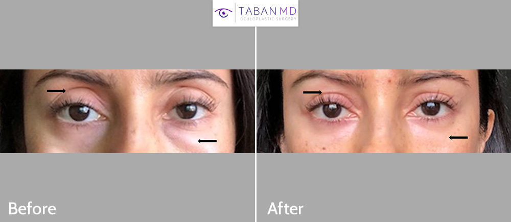 Young woman underwent scarless lower blepharoplasty (to treat under eye fat bags) and upper eyelid filler injection (to treat sunken hollow upper eyelids). Her before/after selfie photos are shown.