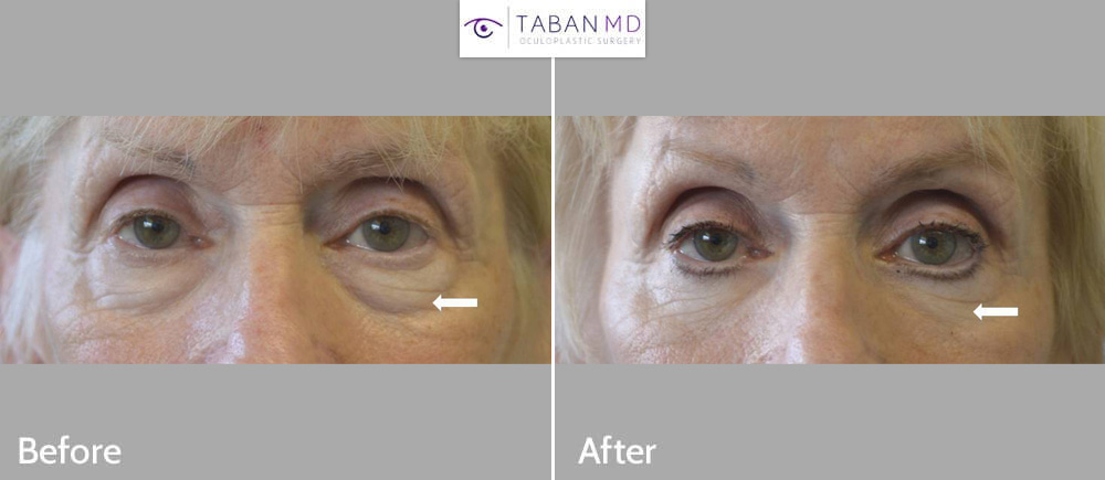 60+ year old woman, with under eye bags and tear trough dark circles, underwent lower blepharoplasty (transconjunctival technique with fat repositioning and skin pinch).
