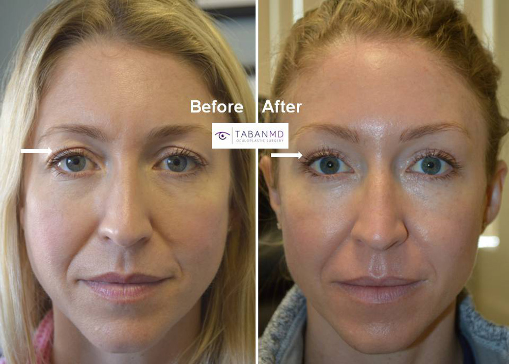 39 year old beautiful woman, with upper eyelid aging due to loose skin folds and fat loss, underwent combined upper blepharoplasty and upper eyelid filler injection. Before and 6 months after cosmetic eyelid surgery photos are shown.