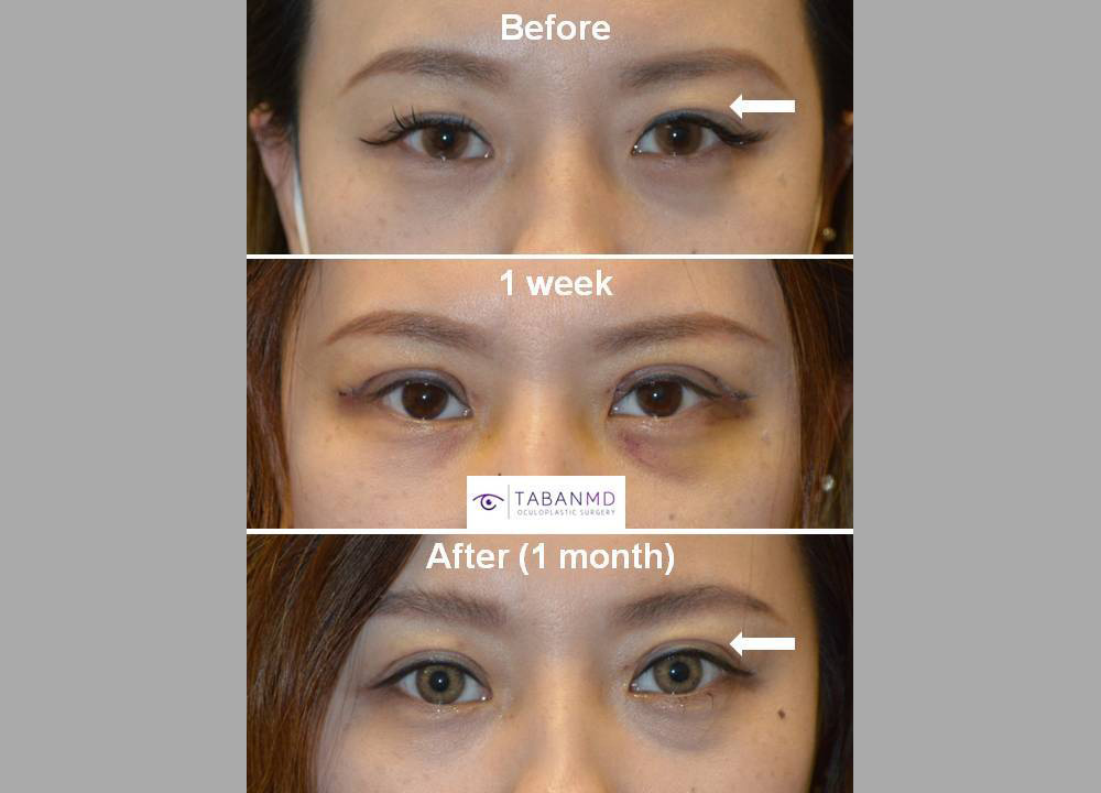 Young Asian female underwent Asian upper blepharoplasty. She wanted relatively aggressive blepharoplasty with more eyelid showing. Upper blepharoplasty is customized to each individual anatomy and desired goal.