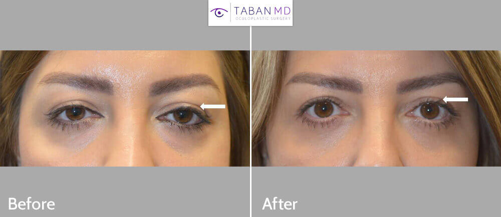 Young woman with tired sad eyes underwent droopy upper eyelid ptosis surgery and canthoplasty and lower blepharoplasty. Before and 3 months after eyelid surgery photos are shown.