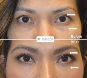 Young Asian lady, complained of upper eyelid asymmetry, droopy lazy left eye, and under eye bags. She underwent left upper eyelid ptosis surgery, bilateral upper eyelid Asian blepharoplasty and lower blepharoplasty (transconjunctival with fat repositioning). Before and 2 months after eyelid surgery photos are shown.