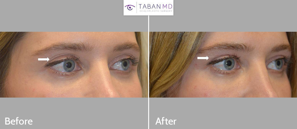 Young beautiful woman received upper eyelid filler injection to correct mildly hollow upper eyelids with loose skin.