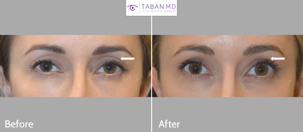 39 year old beautiful woman, complained of upper eyelid aging with hollow sunken eyes and loose saggy skin. She went combined upper blepharoplasty and upper eyelid filler injection. Before and 1 month after eyelid treatment photos are shown. Note more youthful eye appearance.
