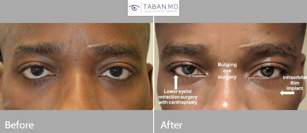 30 year old African American man, with congenital droopy lower eyelids (lower eyelid retraction with negative canthal tilt) and bulging eyes and maxillary hypoplasia with sad tired eye appearance, underwent lower eyelid retraction surgery with canthoplasty, scarless orbital decompression bulging eye surgery, and infraorbital rim silicone implant. His before and after selfie photos are shown. Note change to more almond shaped, upturned eye appearance with positive canthal tilt.