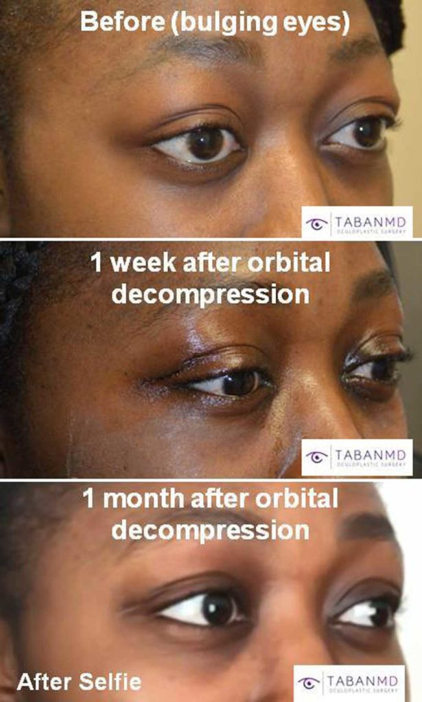 Young beautiful African American woman, with genetic bulging eyes, underwent scarless orbital decompression surgery plus lacrimal gland repositioning.