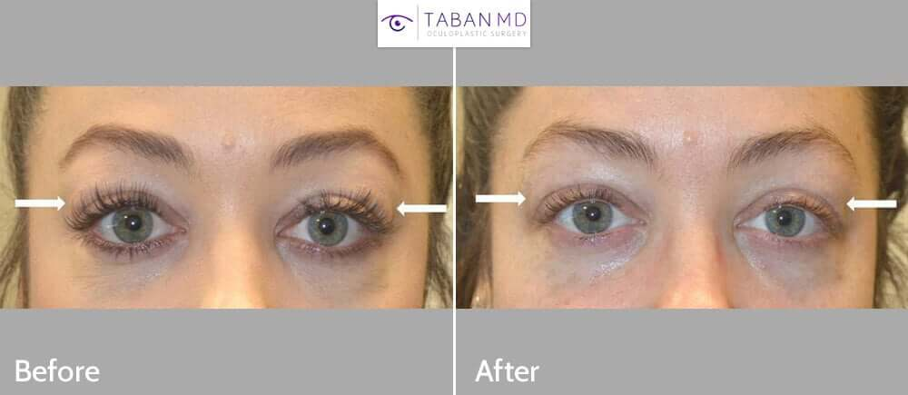 30+ year old woman with bilateral lacrimal gland prolapse underwent lacrimal gland repositioning under local anesthesia. Her full surgical video can be found on our website page.