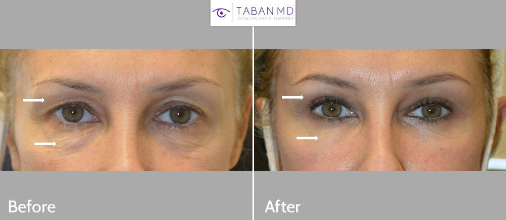 50 year old woman, with eyelid aging, underwent upper blepharoplasty, lower blepharoplasty (transconjunctival technique with fat repositioning, skin pinch), and upper eyelid filler injection. Note more youthful rested eye appearance.