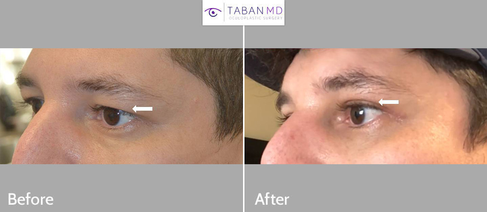 Young man, with hooded tired upper eyelids, underwent male upper blepharoplasty with natural results.