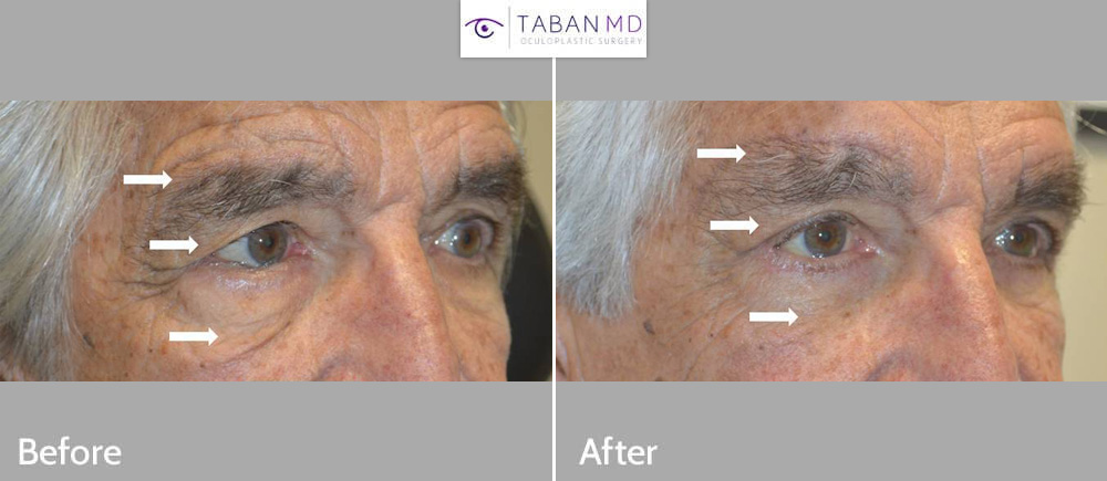 70+ year old man underwent upper blepharoplasty (for hooded eyes), lower blepharoplasty, direct brow lift and entropion surgery. Note natural results.