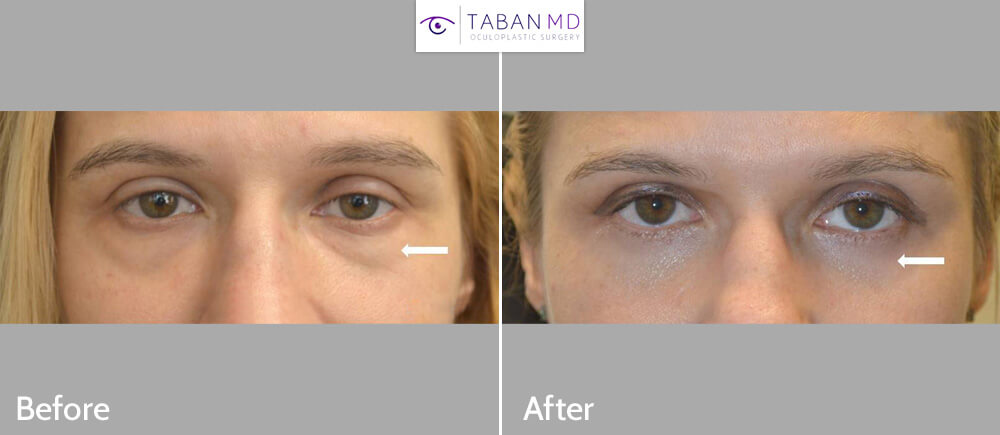 40 year old female underwent lower blepharoplasty (transconjunctival technique with fat repositioning) to correct under eye fat bags and dark circles (tear trough hollowness). Before and 2 YEARS after photos are illustrated, showing the long lasting benefit.