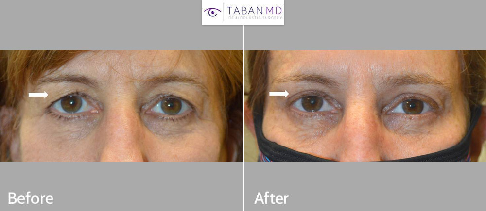 52 year old female, with saggy hooded upper eyelids, underwent upper blepharoplasty with natural results.