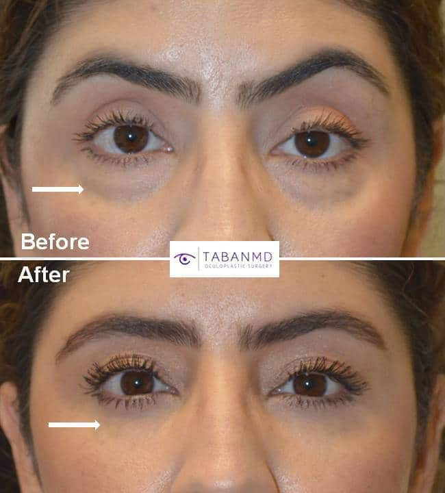 42 year old female, with eyelid aging, underwent upper blepharoplasty, lower blepharoplasty, droopy upper eyelid ptosis surgery, and upper eyelid filler injection. Note more youthful rested eye appearance.
