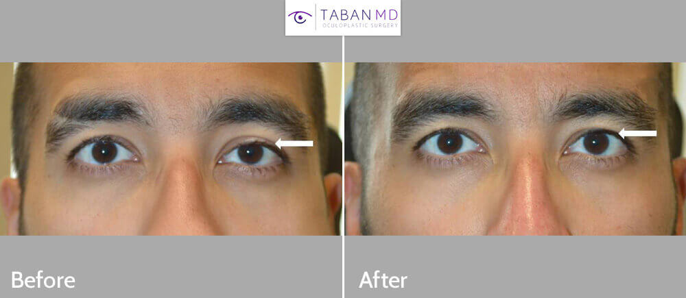 Young man with congenital left upper eyelid ptosis causing eye asymmetry underwent scarless left droopy upper eyelid ptosis surgery under local anesthesia with quick recovery. Note improved eye symmetry in the after photo.
