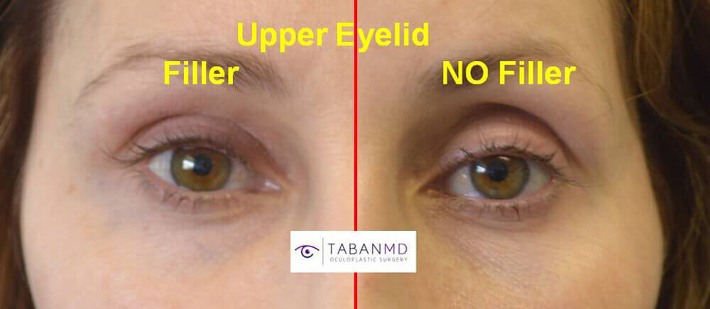 Young mom, with sunken hollow upper eyelids, received upper eyelid filler injection. Photo shows untreated right eye compared to immediately treated left eye.
