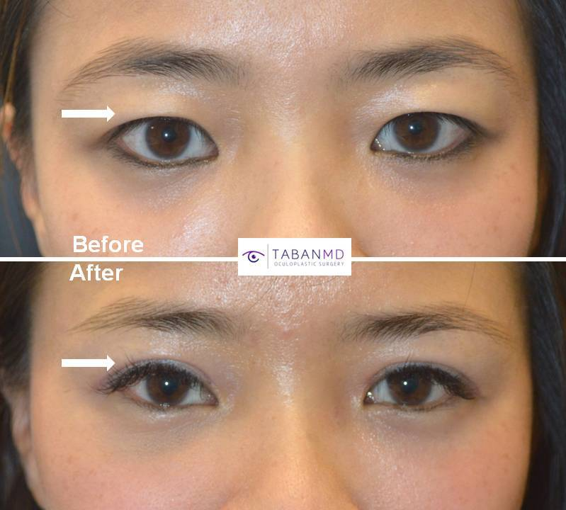 Young Asian woman underwent Asian upper blepharoplasty to have more defined upper eyelid crease. Before and 3 months after eyelid surgery photos are shown.