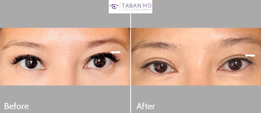 43 year old Asian woman underwent Asian upper blepharoplasty (double eyelid surgery).