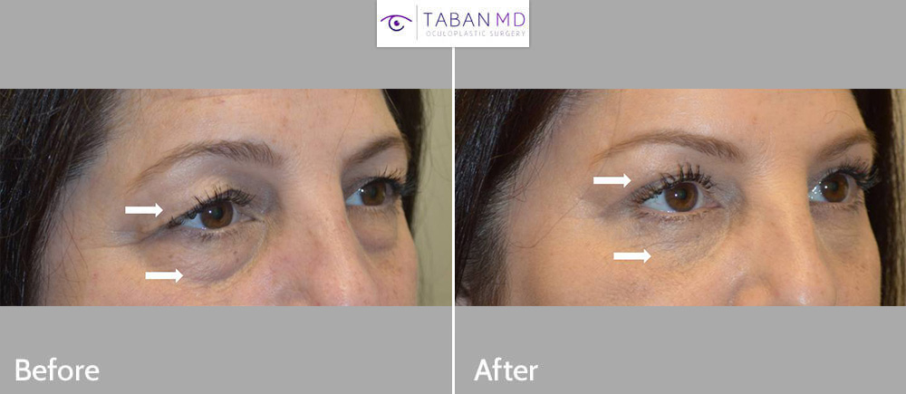 58 year old female, complained of eyelid aging with saggy upper eyelids and under eye bags and hollowness. She underwent upper blepharoplasty and lower blepharoplasty (transconjunctival technique with eye fat repositioning and skin pinch).