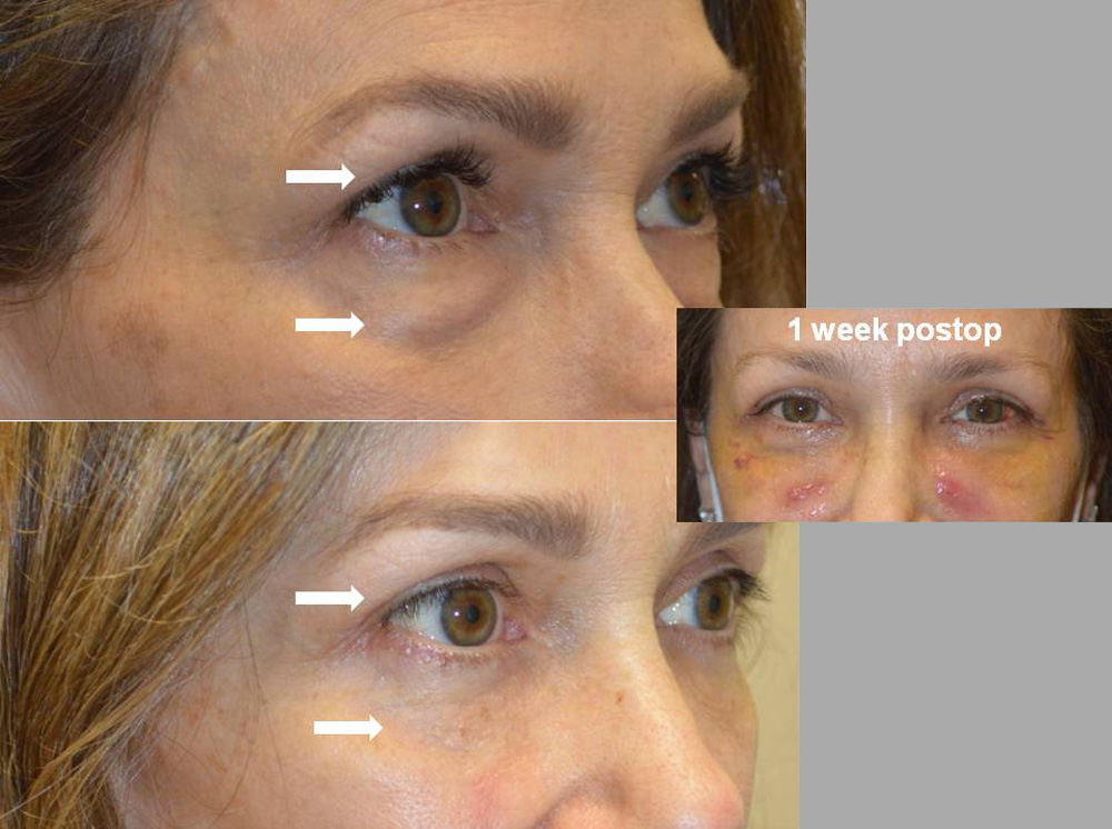 56 year old female, complained of eyelid aging with saggy loose upper eyelid skin and under eye bags. She underwent cosmetic lower blepharoplasty (transconjunctival technique with eye fat bags repositioning and skin pinch) and upper blepharoplasty.