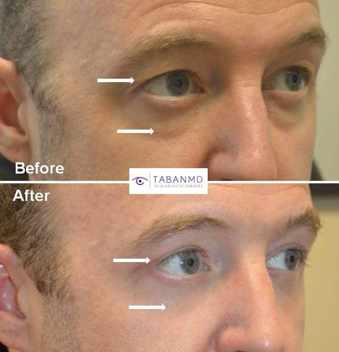 Young man, with tired appearing eyes, underwent male upper blepharoplasty and lower blepharoplasty.