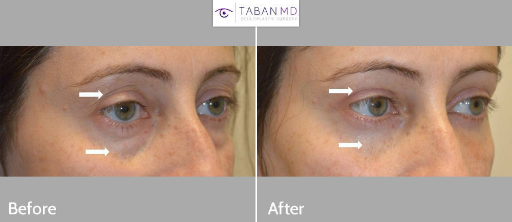 43 year old woman underwent upper blepharoplasty for saggy upper eyelids and lower blepharoplasty (transconjunctival technique with fat repositioning, skin pinch) for under eye bags and tear trough hollowness plus upper eyelid filler injection.