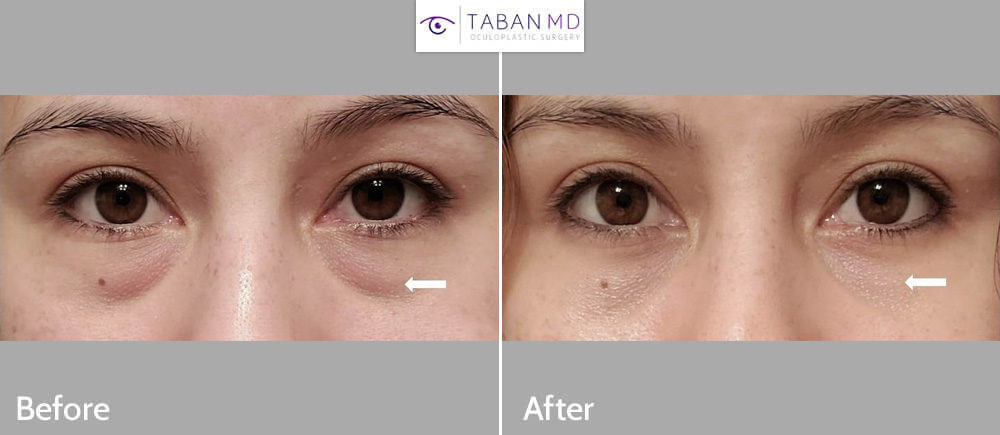Selfie photo of young beautiful woman underwent scarless lower blepharoplasty (transconjunctival approach with fat bags repositioning to tear trough area).