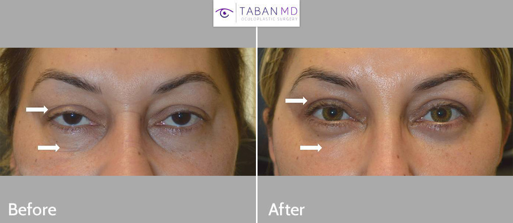 43 year old female, with tired older eye appearance, underwent droopy upper eyelid ptosis surgery, upper blepharoplasty, and lower blepharoplasty. Her before and 1 month after cosmetic eyelid surgery photos are shown. Note quick healing with natural results.