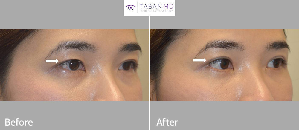 Young beautiful young Asian woman underwent Asian upper blepharoplasty (double eyelid surgery).