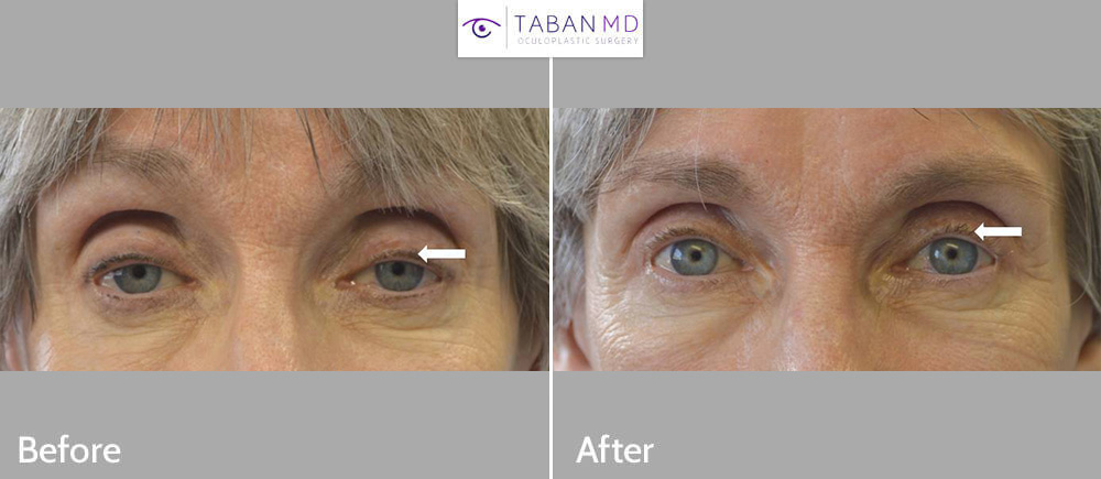 77 year old female underwent scarless upper eyelid ptosis surgery to improve severe droopy upper eyelids affecting her vision.