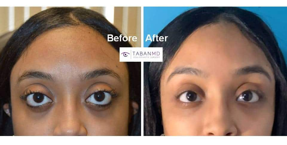 Young woman underwent life changing eye plastic surgery (cosmetic orbital decompression, lower eyelid retraction surgery with canthoplasty, infraorbital rim implant, and upper eyelid filler injection) to improve her eye appearance.