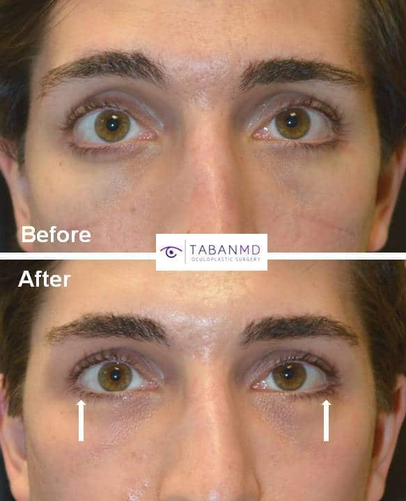 Young man, who suffered from significant lower eyelid retraction with negative canthal tilt after infraorbital rim implant by another surgeon, underwent corrective lower eyelid retraction repair with canthoplasty.