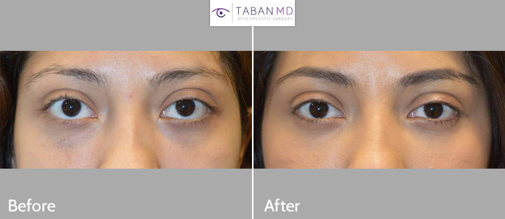 Young beautiful woman with genetic prominent bulging eyes underwent scarless cosmetic orbital decompression surgery. (She had initially tried temporary filler but later did this permanent surgery.)