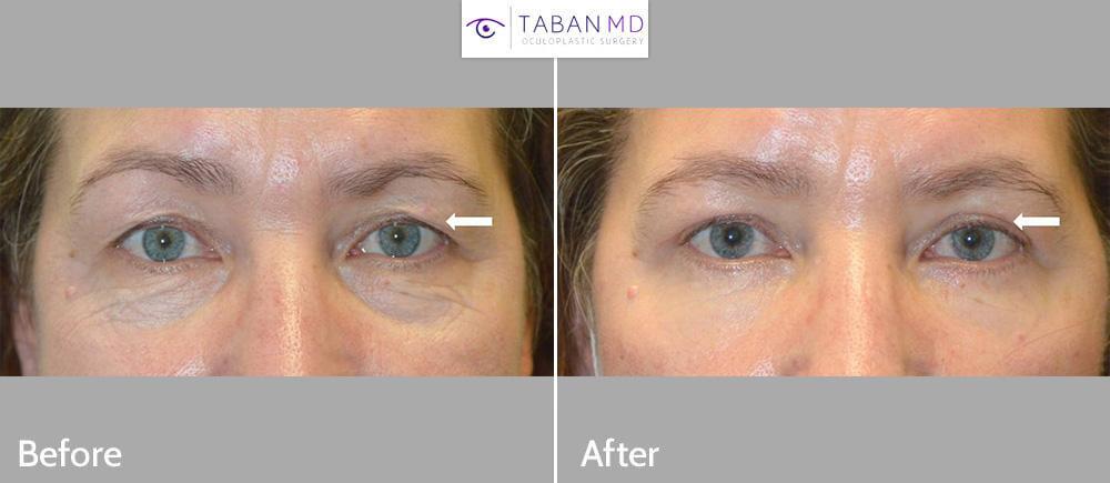 53 year old female underwent upper blepharoplasty to improve saggy hooded upper eyelids.